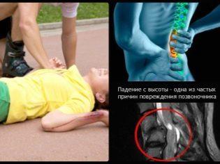Ребенок жалуется на боль в спине - причины и лечение