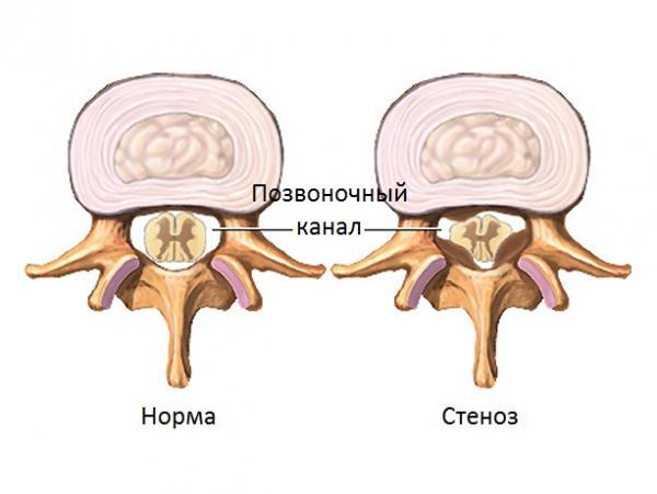 Стеноз позвоночного канала шейного отдела - симптомы и лечение