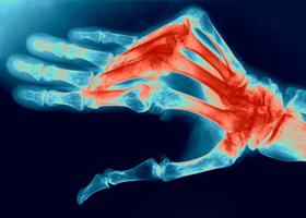 Полиартрит - симптомы и лечение, что это такое за болезнь