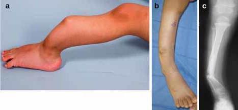 Ложный сустав - что это такое, симптомы, диагностика и лечение