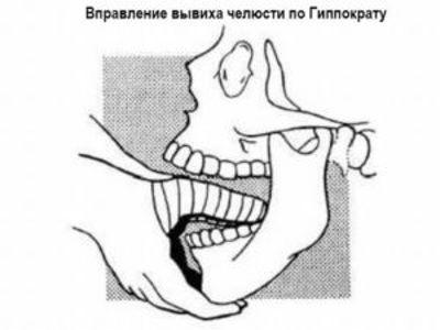 Вывих челюсти - к какому врачу идти, симптомы и лечение