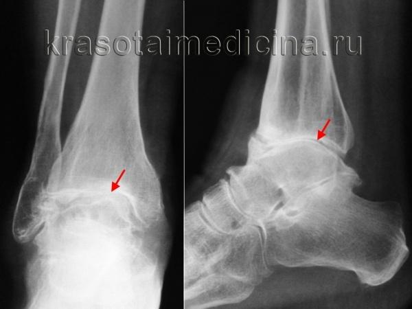 Артроз голеностопного сустава - симптомы и лечение, диагностика