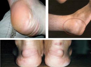 Бурсит стопы - основные симптомы и методы лечения
