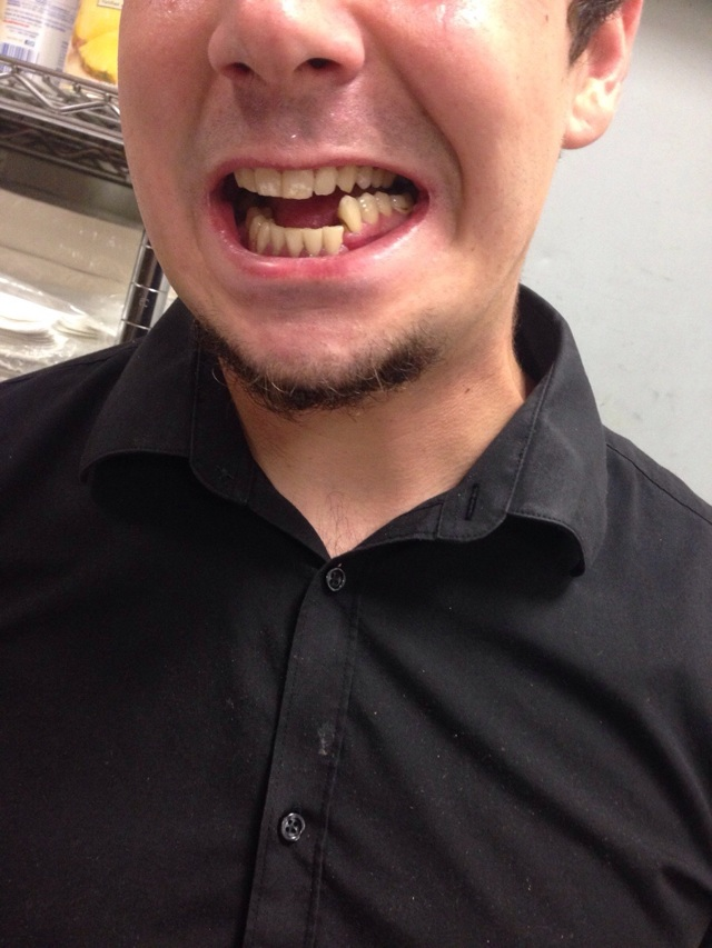 бБлит челюсть при открытии рта и когда жуешь - что делать?