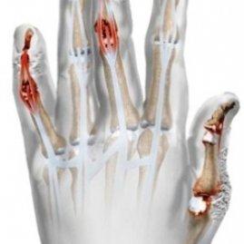 Псориатический артрит - симптомы и методы лечения