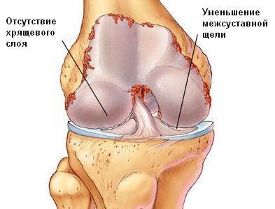 Артроз 4 степени коленного сустава - причины, диагностика, лечение