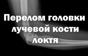 Перелом головки лучевой кости локтя - лечение и восстановление