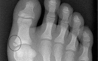 Как отличить ушиб мизинца на ноге от перелома - симптомы