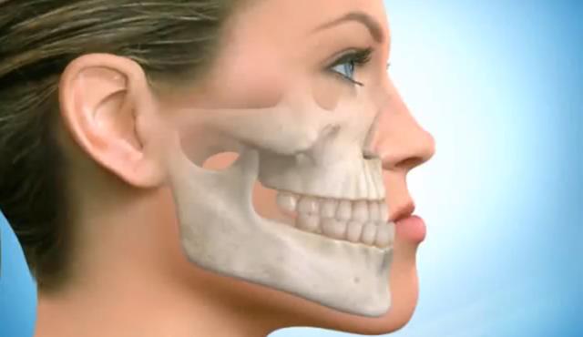 Щелкает челюсть при открытии рта и хрустит - почему и что делать?
