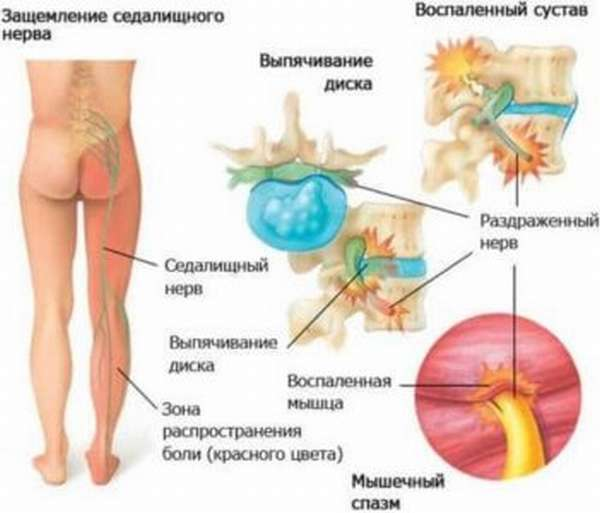 Онемение стопы при грыже позвоночника - лечение