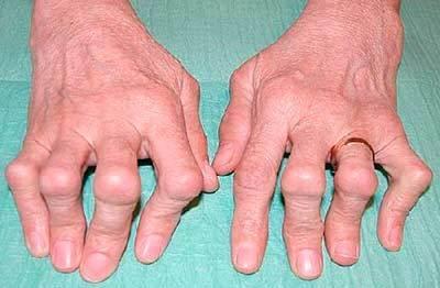 Ревматоидные узелки - что это такое, симптомы и лечение