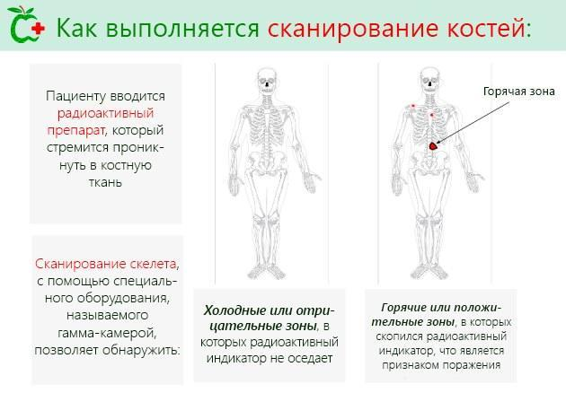 Сцинтиграфия костей скелета - что это такое и как ее проводят?