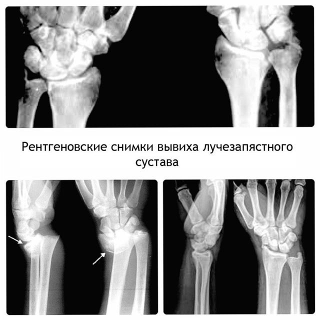 Вывих руки - что делать? Симптомы, диагностика и лечение