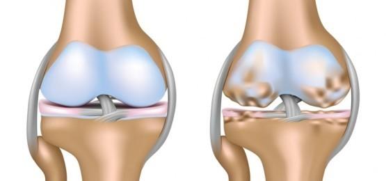 Генерализованный остеоартроз - что это такое и как лечить