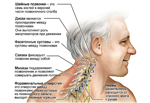 Хруст в шее при поворотах головы в бок - причины и лечение