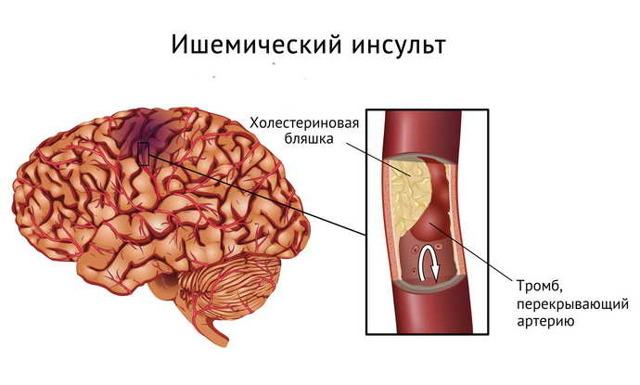 Аномалия Киммерли - что это такое, симптомы и как лечить
