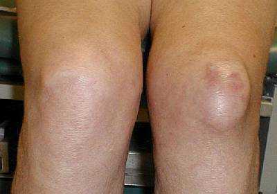 Бурсит коленного сустава - симптомы и лечение