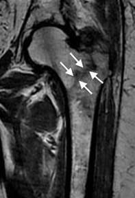Перелом шейки бедра - симптомы, лечение и сроки восстановления