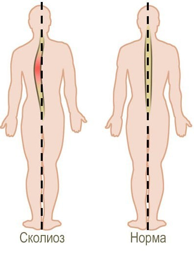 Сколиоз 4 степени - методы лечения у взрослых