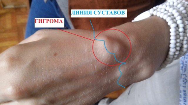 Гигрома на пальце руки - лечение с операцией и без