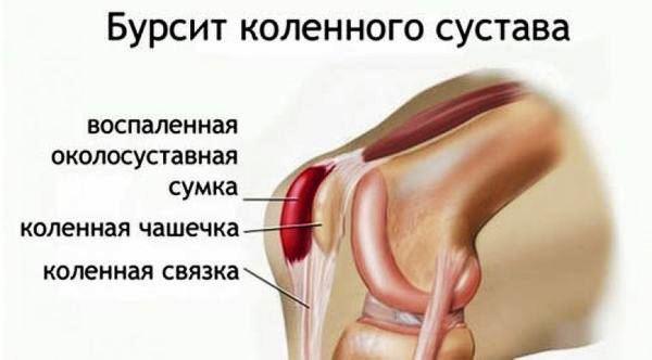 Боль в колене сбоку с внутренней стороны - почему и как лечить