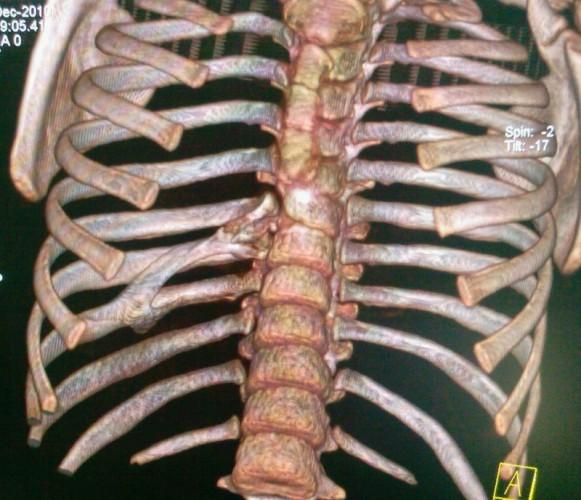 Аномалии развития позвоночника - виды, причины, диагностика