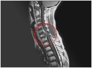 Саркома позвоночника - что это такое, симптомы и лечение