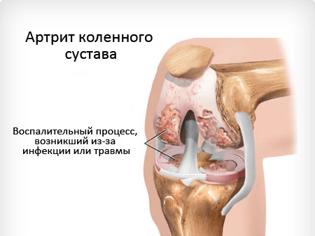 Инфекционный артрит - причины, симптомы и лечение