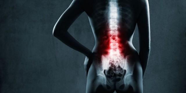 Артрит позвоночника - симптомы, лечение и диагностика