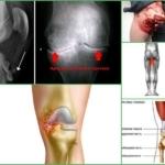 Контрактура коленного сустава - что это такое, симптомы и лечение