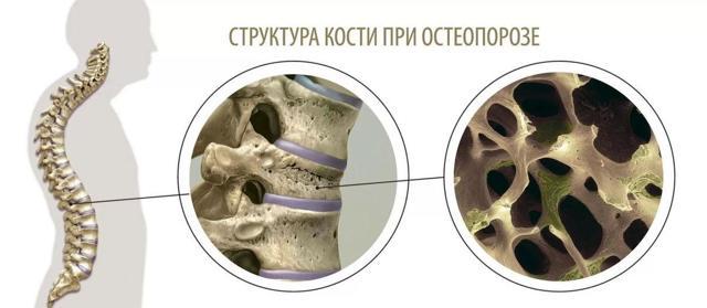 Отек костного мозга позвоночника - что это такое и как лечить?