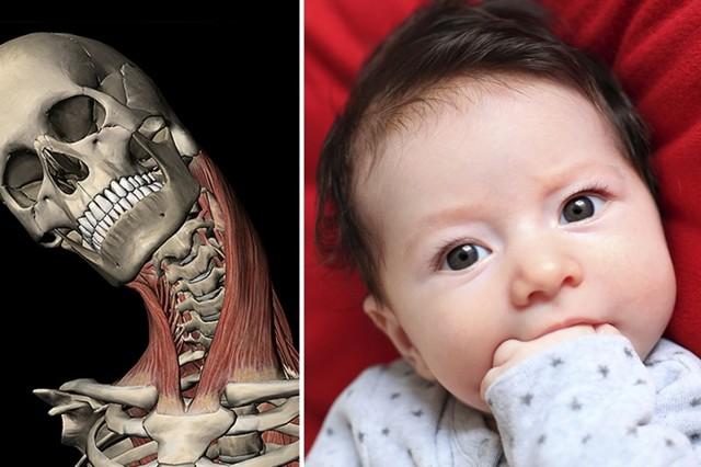 Родовая травма шейного отдела позвоночника у новорожденных последствия