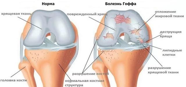 Болезнь Гоффа коленного сустава - что это, симптомы и лечение