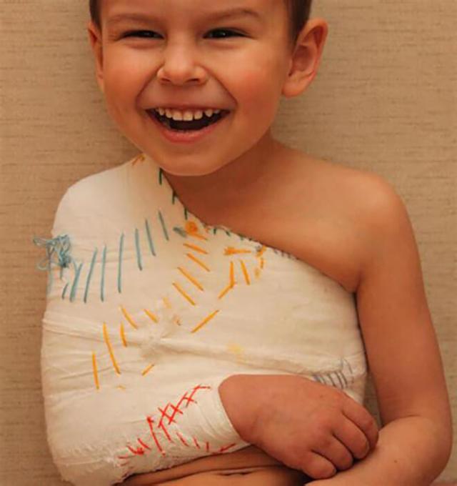 Перелом ключицы у ребенка до года и более со смещением и без