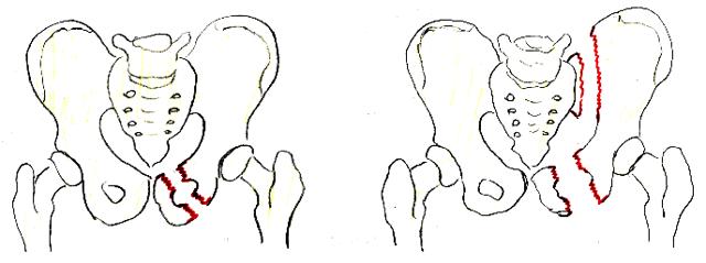 Перелом лобковой кости - лечение, реабилитация и последствия