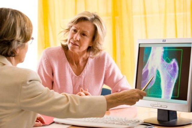 Какой врач лечит остеопороз костей у женщин и мужчин