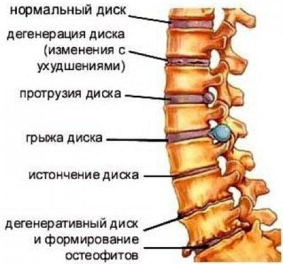 Блокада при остеохондрозе позвоночника - что это такое, как делается