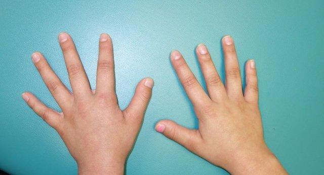 Брахидактилия большого пальца - что это такое, причины развития