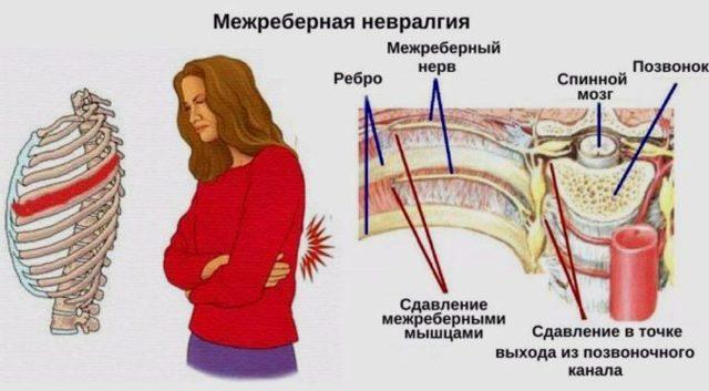 При кашле болит спина в области лопаток - причины и лечение