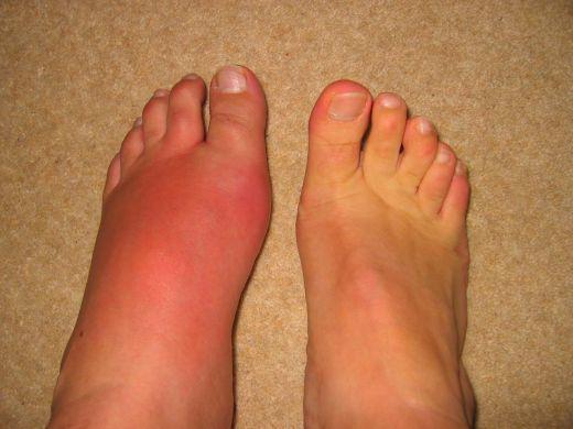 Воспаление сустава на ноге - что делать? Причины и методы лечения