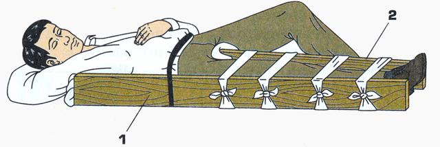 Наложение шины на сломанную конечность - правила