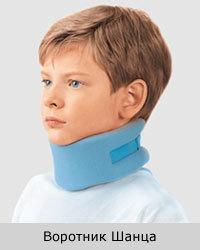 Подвывих шейного позвонка у ребенка и взрослого - симптомы