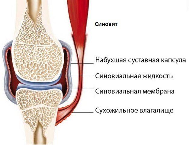 Артроз коленного сустава - что это такое, симптомы и лечение