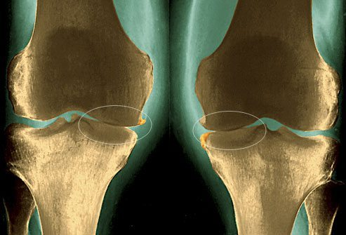 Лекарство от артроза коленного сустава - список лучших