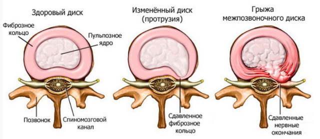 Полисегментарный остеохондроз позвоночника - что это такое?