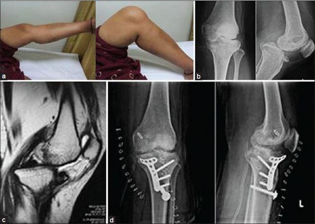 Перелом мыщелка большеберцовой кости - лечение и реабелитация