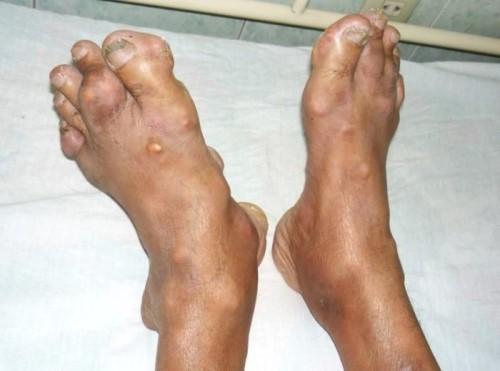 Тофусы при подагре - лечение народными средствами