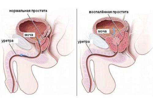 Боль в пояснице у мужчин - что делать, причины и лечение