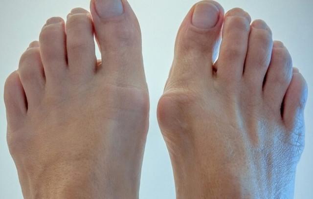 Пластырь от косточек на ногах - виды и их эффективность