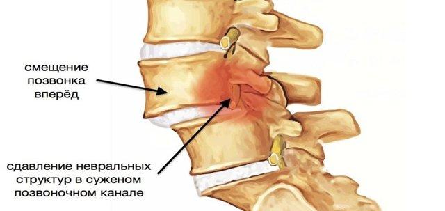 Боли в шее и плечах - причины и лечение. К какому врачу обратиться?